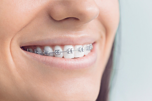 Close up of smiling woman with metal braces