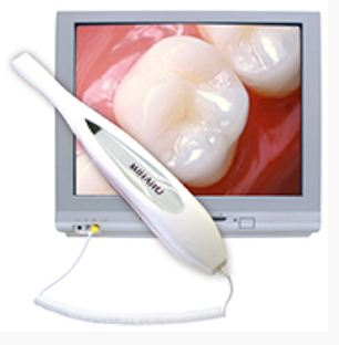 Intraoral camera at Roane Family Dental.